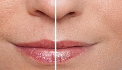 korzyści ze stosowania kolagenu kosmetycznego