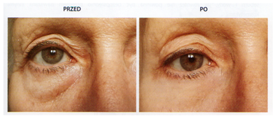 Zobacz efekty stosowania zestawu napinajacego pod oczy Colway